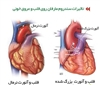 سندرم مارفان (Marfan syndrome)